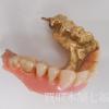 K10金歯付きの入れ歯